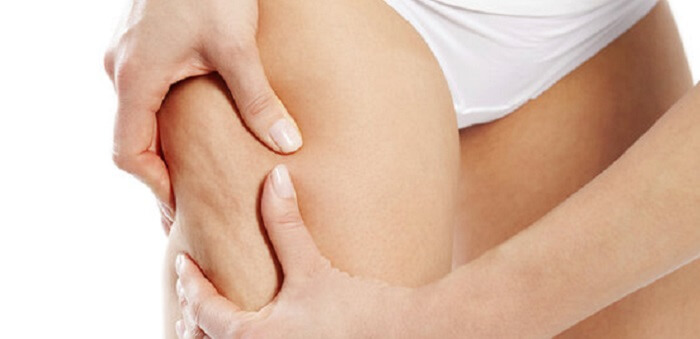 Cellulite Treatment Options